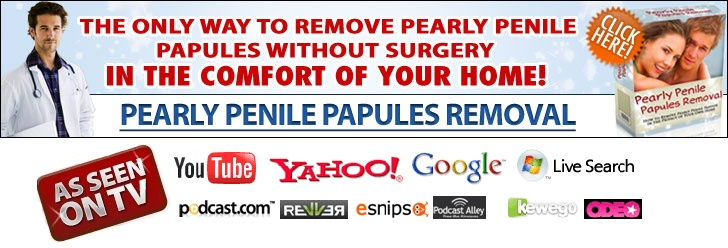 Pearly Penile Papules Removal Review